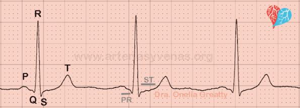 Ondas y segmentos del EKG