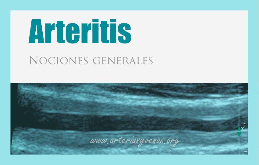 Arteritis