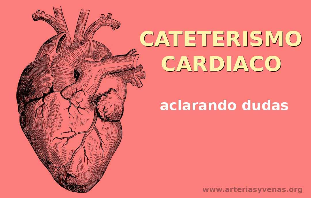 Cateterismo, aclarando dudas en términos sencillos | Arterias y Venas