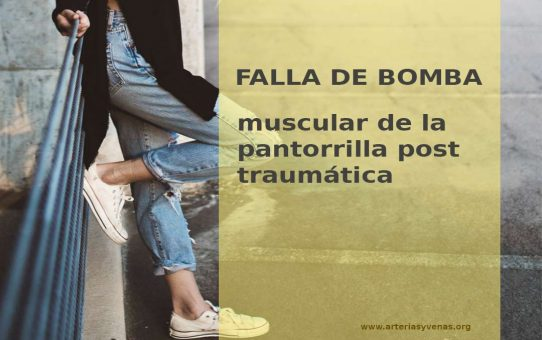 Falla de bomba