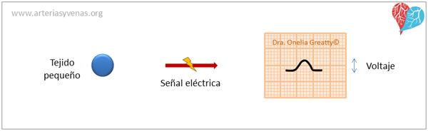 Trazado de baja amplitud del electrocardiograma (EKG)