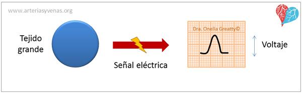 Trazado de mayor amplitud del electrocardiograma (EKG)