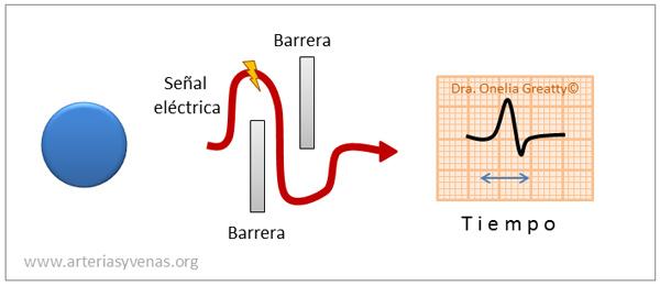 Trastorno de la conducción (bloqueo) en el electrocardiograma (EKG)