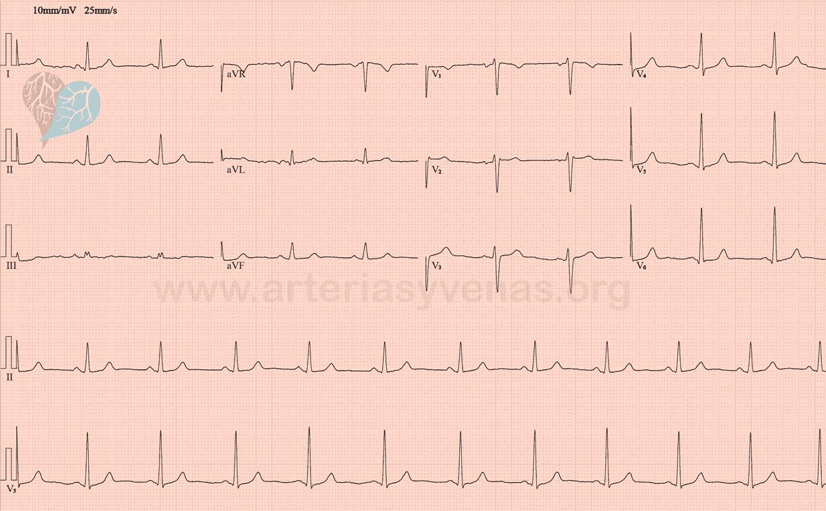 Electrocardiograma (EKG) normal