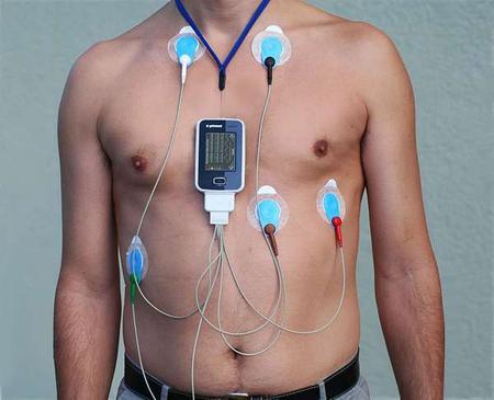 Holter del ritmo cardíaco