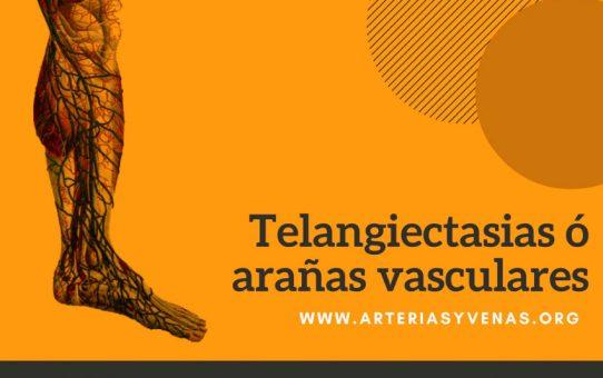 Telangiectasias, Vasitos o arañitas vasculares