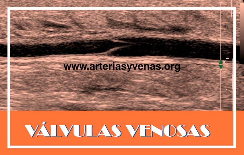 Válvulas venosas | Arterias y Venas