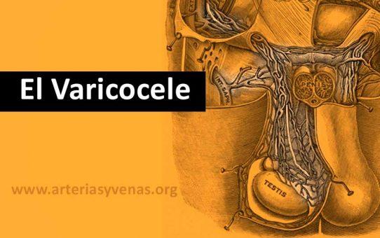 Varicocele, en qué consiste, síntomas y tratamiento