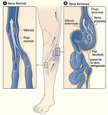 Los asteriscos vasculares en los pies al embarazo de la foto