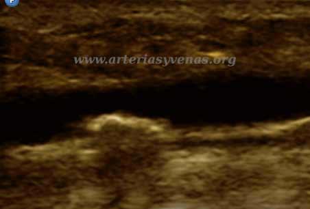 Imagen calcificada en pared posterior de la vena safena parva