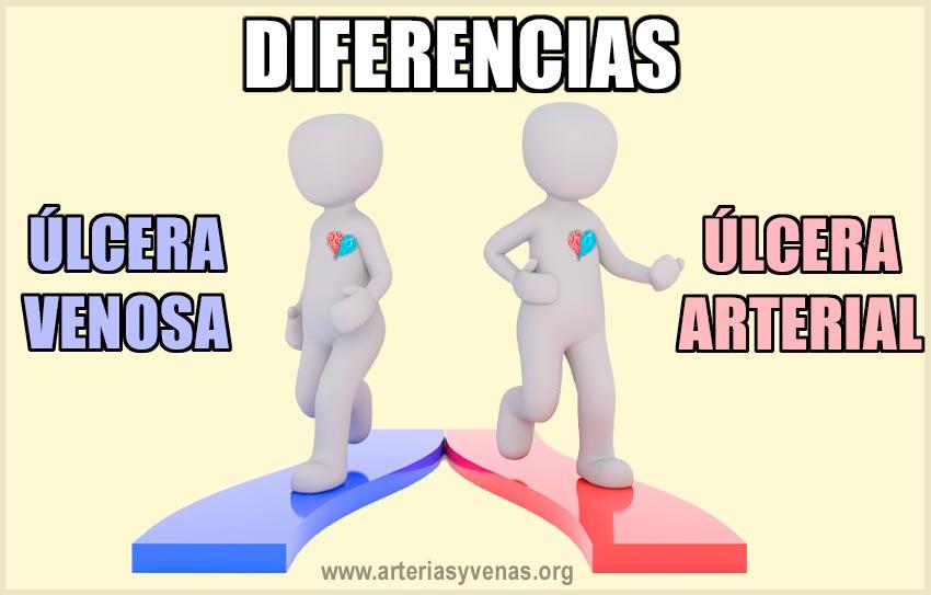 Diferencia entre la úlcera venosa y la arterial