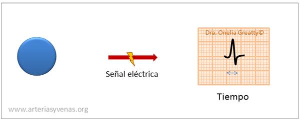 Trazado sin bloqueo del electrocardiograma (EKG)