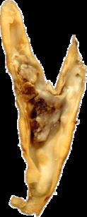 Placa de ateroma en una bifurcación arterial