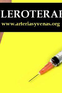 escleroterapia