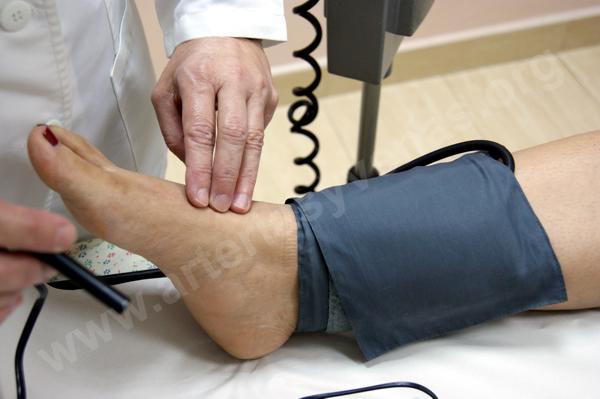 ¿Puede la presión arterial alta hacer que las piernas se adormezcan?