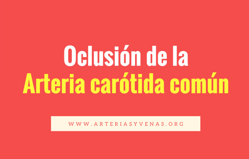 oclusión de la arteria carótida común