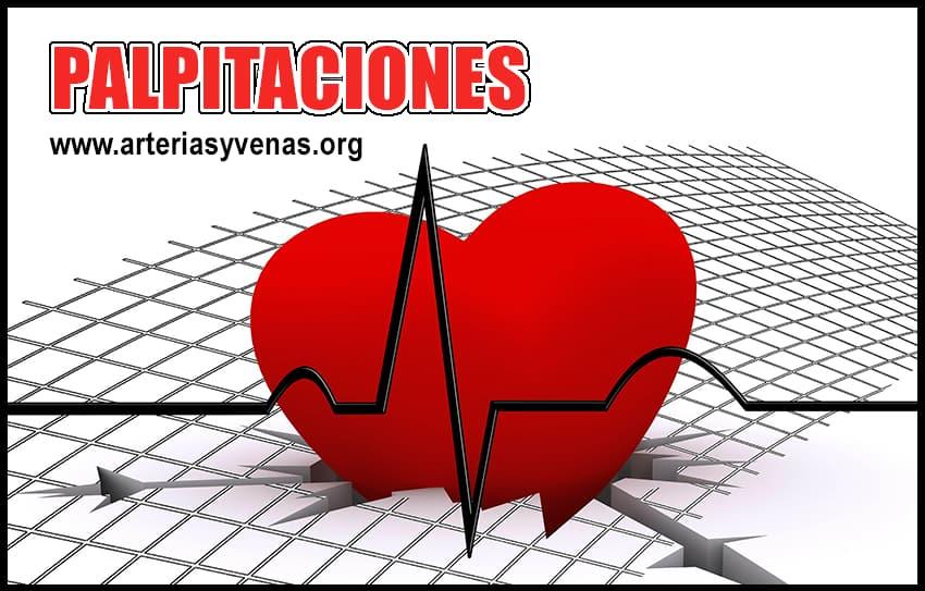 Palpitaciones Cardíacas