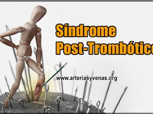 Síndrome Post Trombótico