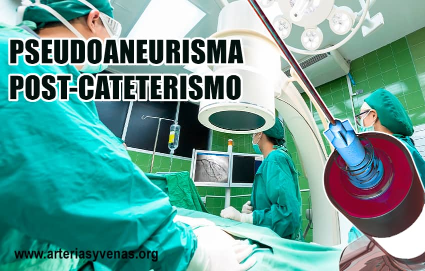 Pseudoaneurisma femoral post cateterismo